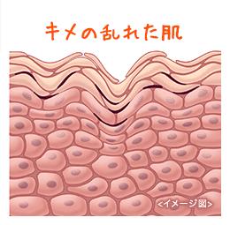 キメの乱れた肌                                 イメージ図